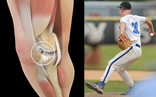 ACL And Person Playing Baseball