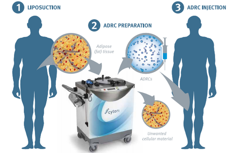 Adipose Stem Cell Injections for Knee Arthritis